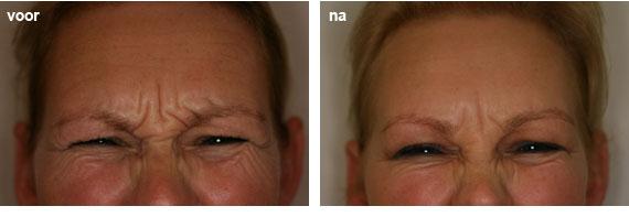 botox injecties tegen rimpels