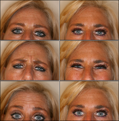 rimpels oogleden