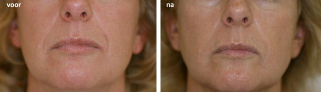 Dokter Anwar Thio, A.K. Thio, Body Clinic, Botox, Facelift, Vollere lippen, rimpelbehandeling, Radiesse, handen, handverjonging, facelift, restylane, rimpelbehandeling, rimpels verwijderen, Hyaluronzuur, Teosyal, Hyacorp