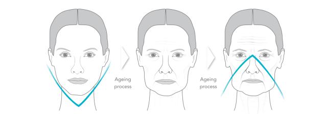 Radiesse huidverjonging rimpelbehandeling