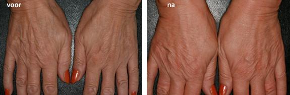 Radiesse handverjonging voor en na foto
