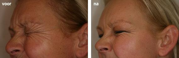 rimpels onder ogen botox